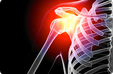 Shoulder & Arm Injuries